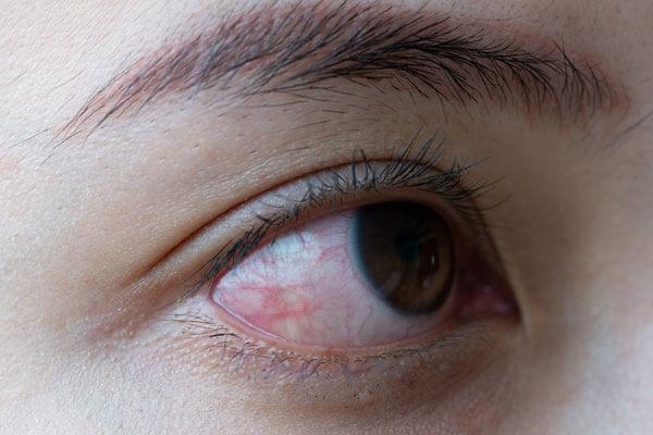 Ayurvedic eye diseases 2