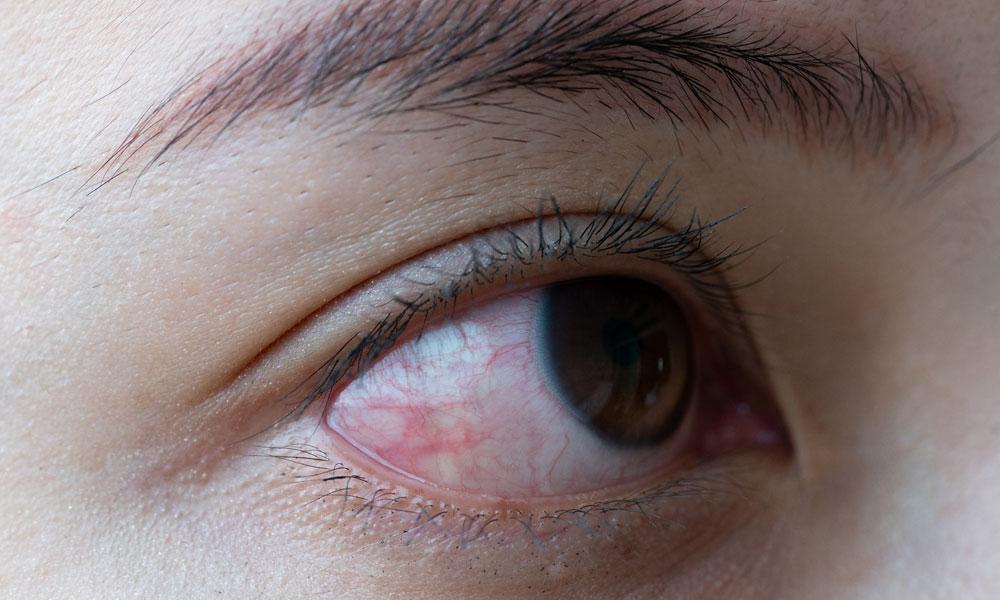 Ayurvedic eye diseases